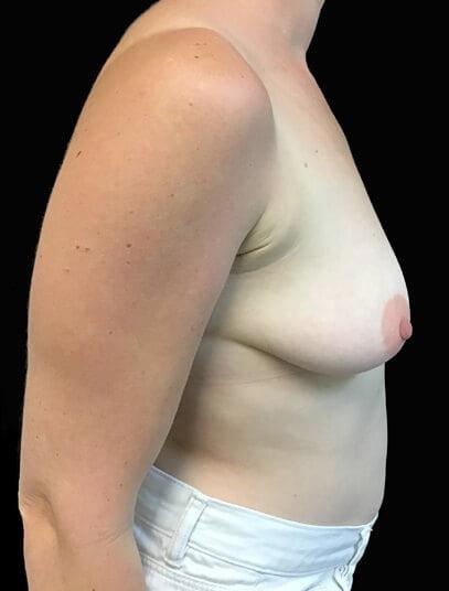 Specialist surgeon abdominoplasty and breast lift, augmentation Brisbane