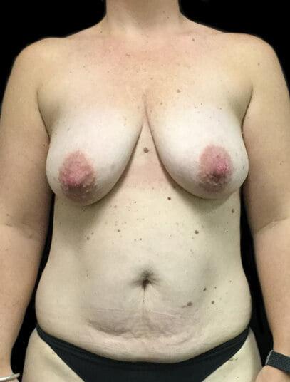 Abdominoplasty surgeon Brisbane