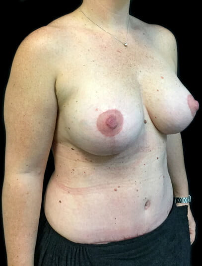breast lift and implants with tummy tuck Dr Sharp