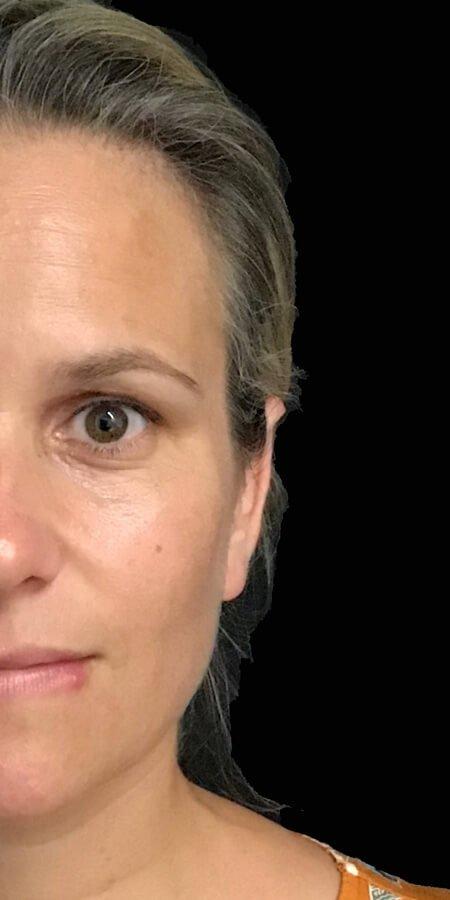 plastic surgeons ear pinning