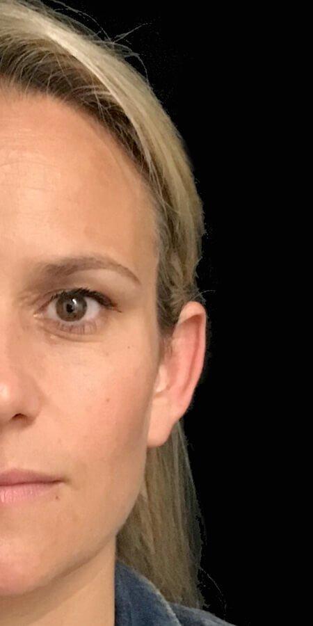 ear pinning surgery otoplasty Brisbane
