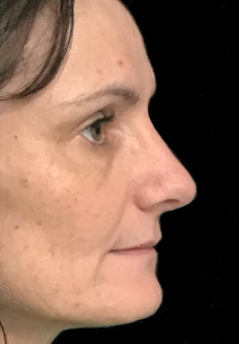 Brisbane rhinoplasty surgeon nose job