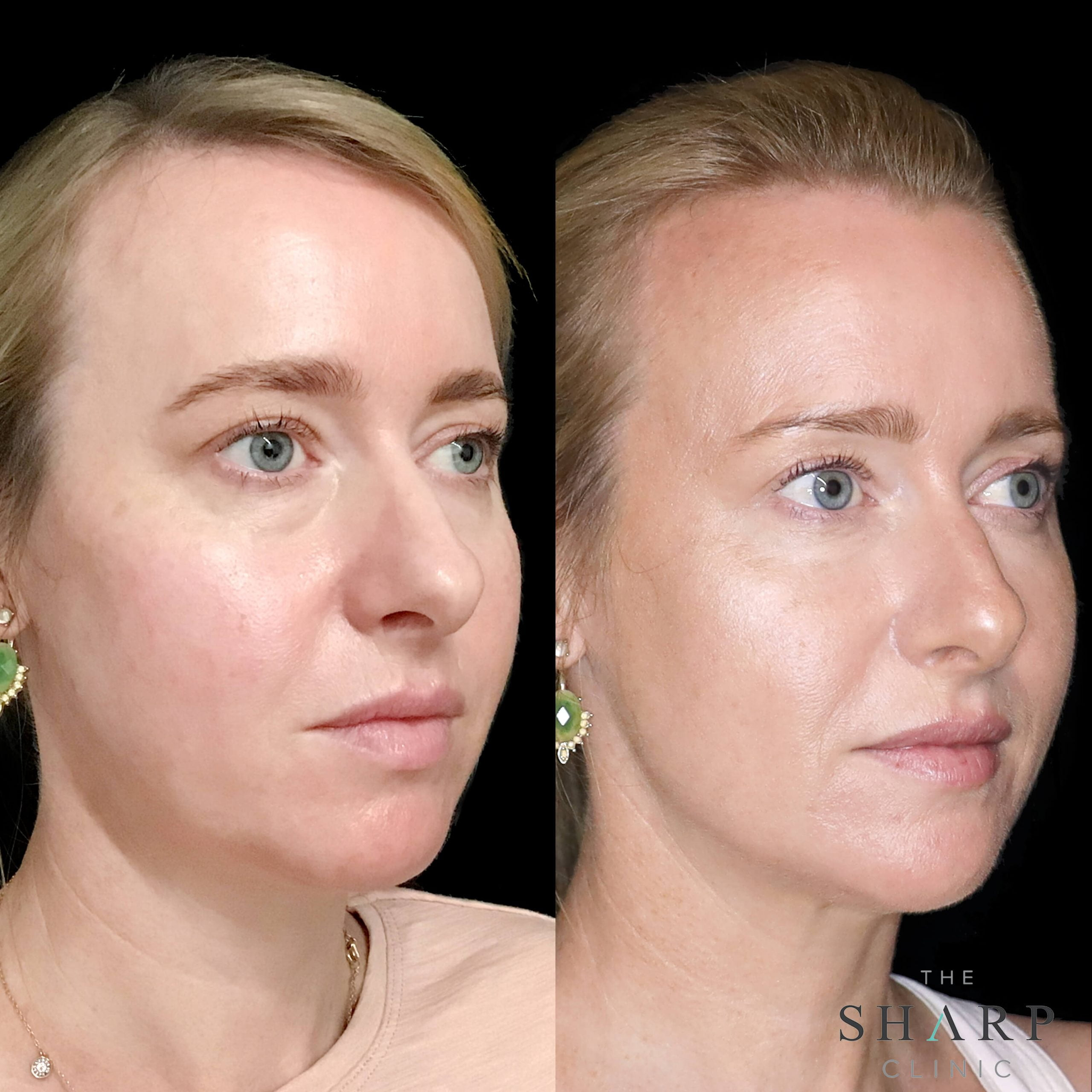 Full face rejuvenation fillers botox with nurse Britt 2 scaled
