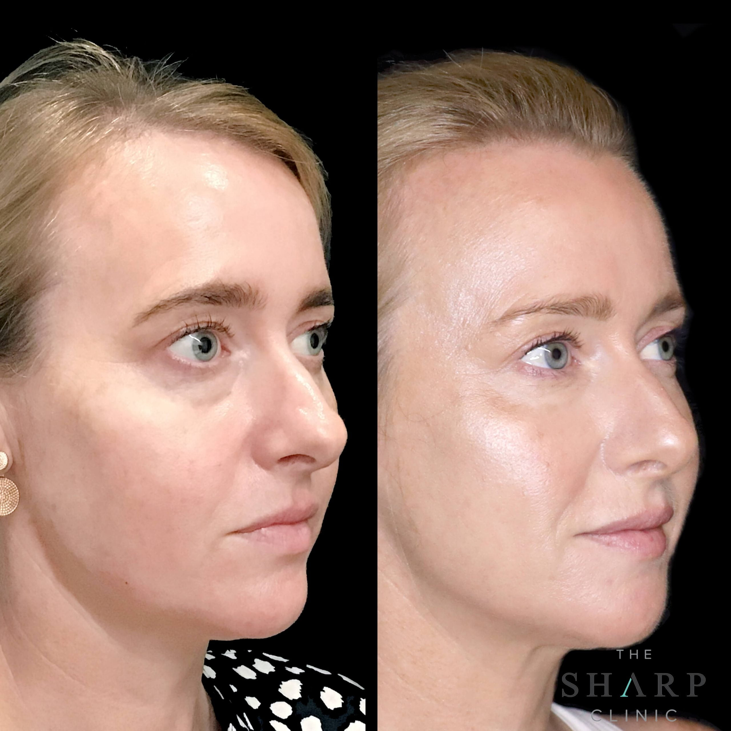 Full face rejuvenation fillers botox with nurse Britt scaled