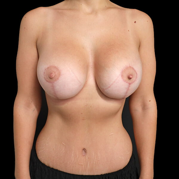 breast augmentation scarring lift