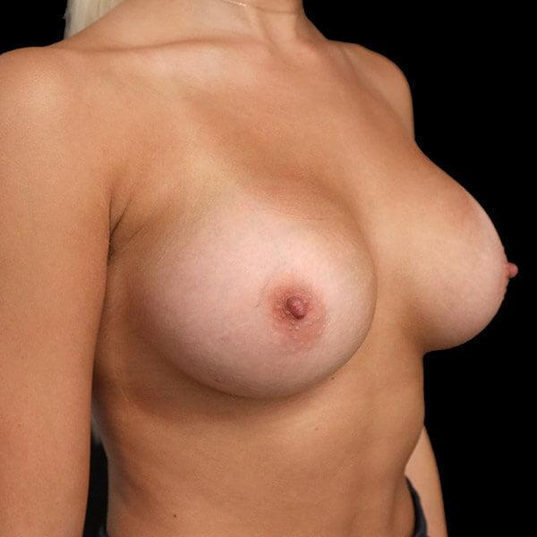 breast augmentation scar