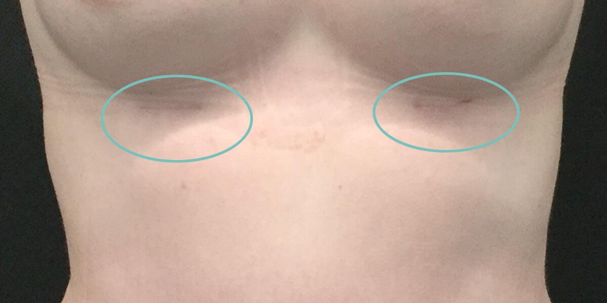 scar breast augmentation