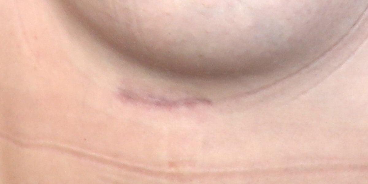 new breast augmentation scar