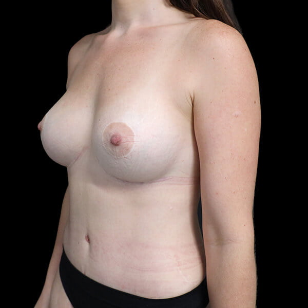 scarring for breast implants
