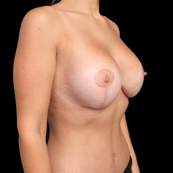scars with mastopexy surgery