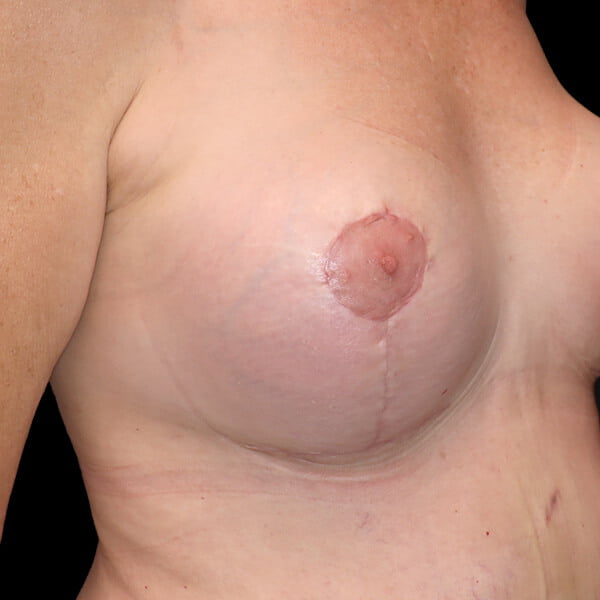 scars from breast lift