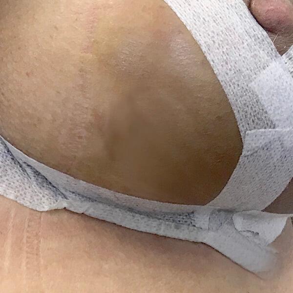 post op bruising 3