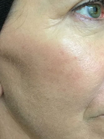 Fraxel for removal of pigmentation