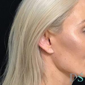facelift scars S lift